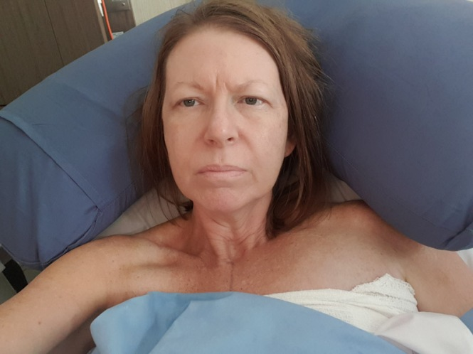 I experience a post operative complication after my bilateral prophylactic mastectomy.  In this photo I am severely anaemic.  I had a haemorrhage in my left breast.  The swelling is visible in this photo.